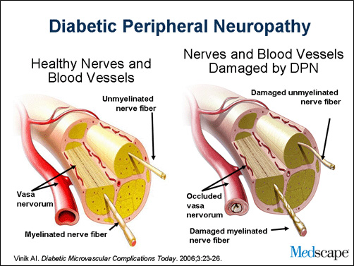 Healthy vs DNP nerves and vessels